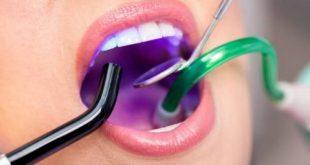 trám răng có được đánh răng không