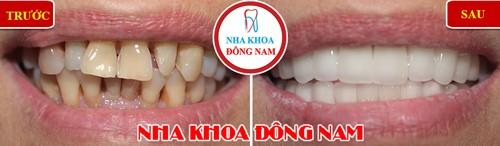 40 tuổi niềng răng có được không