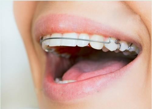 Đeo hàm duy trì niềng răng trong bao lâ
