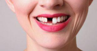 Gây tranh cãi khi có người khuyên không nên trồng răng giả