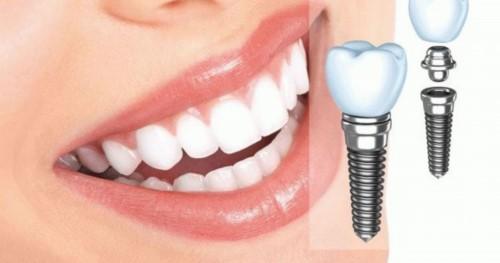 Giá Cấy Ghép Răng Implant Bao Nhiêu Tiền