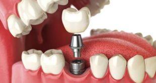 công nghệ trồng răng implant