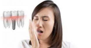 Nguyên nhân gây hôi miệng sau khi cấy ghép Implant