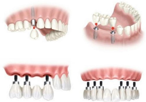 Trồng răng giả nguyên hàm bao nhiêu tiền