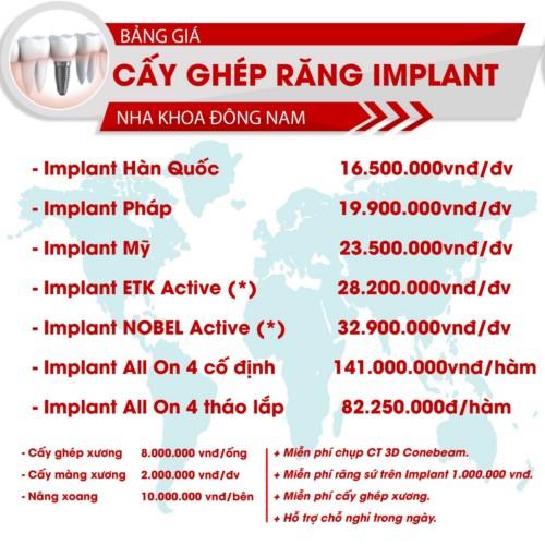bảng giá răng implant
