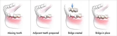 Kỹ thuật làm cầu răng sứ
