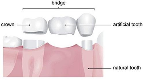 Cấu tạo cầu răng sứ