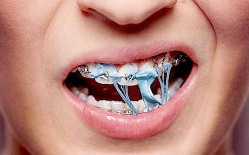 Chăm sóc răng miệng khi đeo niềng răng như thế nào 1