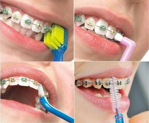 Chăm sóc răng miệng khi đeo niềng răng như thế nào 2
