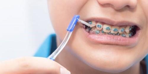 Chăm sóc răng miệng khi đeo niềng răng như thế nào 3