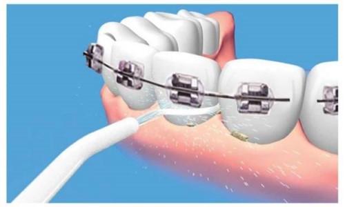 Chăm sóc răng miệng khi đeo niềng răng như thế nào 6