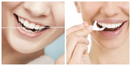 chỉ nha khoa có làm răng thưa không