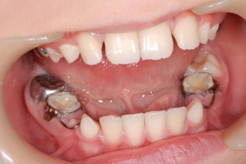 5 dấu hiệu viêm tủy răng nguy hiểm ở trẻ em?;