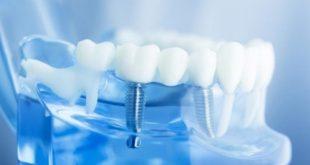 Công nghệ trồng răng Implant là như thế nào?