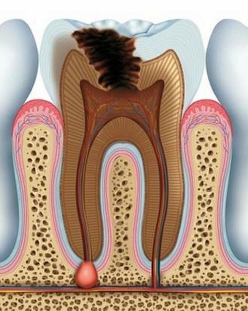 Khi Nào Cần Phải Điều Trị Tủy Răng?