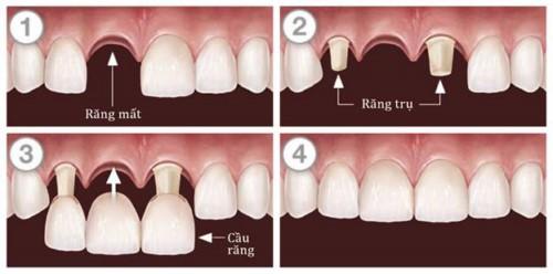 mô phỏng trồng cầu răng sứ