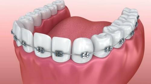 mô phỏng niềng răng