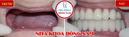 phục hình răng giả tháo lắp 2 hàm