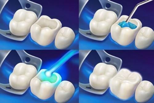 mô phỏng trám răng
