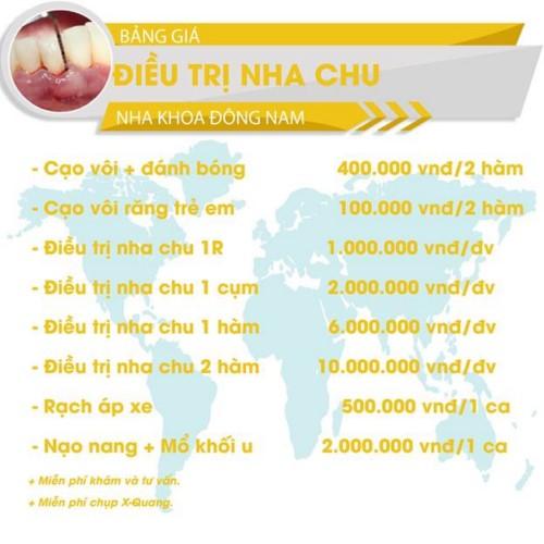 bảng giá điều trị nha chu