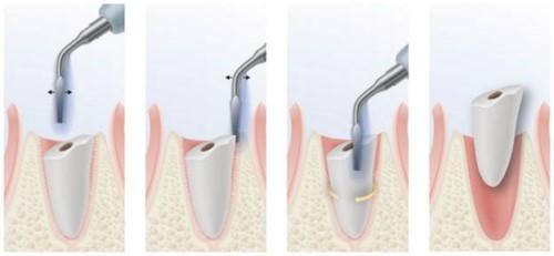 mô phỏng kỹ thuật nhổ răng