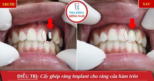 dịch vụ cấy ghép implant
