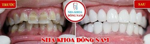 mặt dán răng sứ Laminate