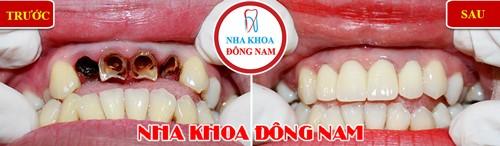 chữa tủy răng bọc sứ