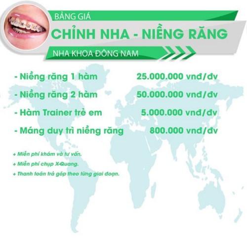 bảng giá chỉnh nha niềng răng