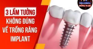 Những Suy Nghĩ Sai Lầm Về Cấy Ghép Răng Implant