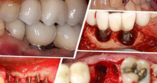 [Top 6] - Biến chứng sau khi cấy ghép Implant thường gặp nhất?