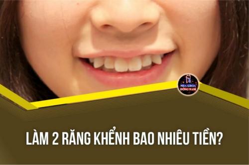 [Tư Vấn] Làm 2 cái răng khểnh bao nhiêu tiền?