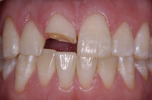 Trồng răng cửa giá bao nhiêu tại nha khoa đông nam?