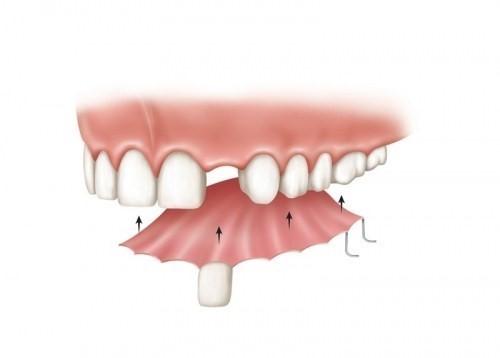 răng giả tháo lắp cho răng cửa