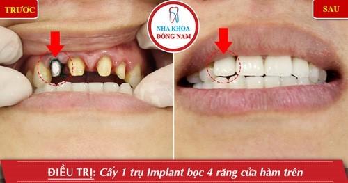 cấy implant và bọc sứ răng cửa hàm trên