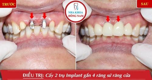 trồng 2 trụ implant răng cửa