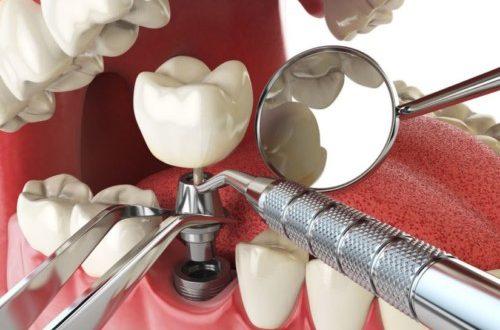 Trồng răng hàm Implant giá bao nhiêu?