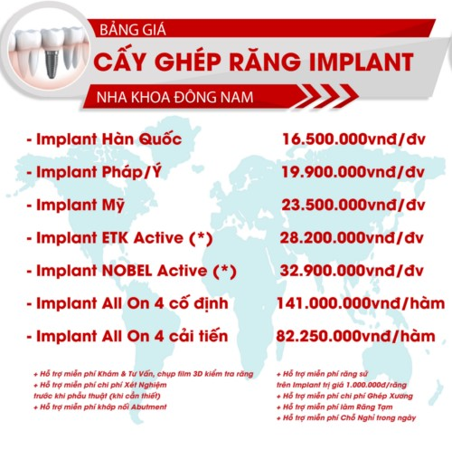bảng giá cấy ghép răng implant