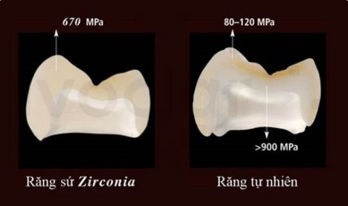 [Tư Vấn] Tại Sao Nên Dùng Răng Sứ Zirconia Để Làm Răng?