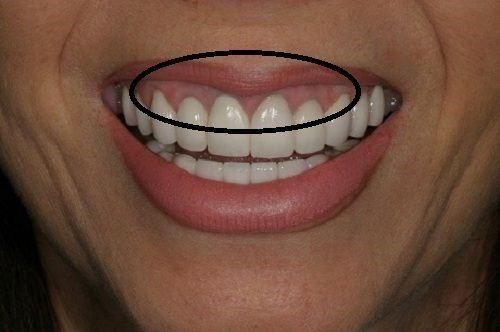 Ưu và nhược điểm của các loại răng sứ hiện nay?