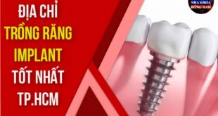 TOP 13 địa chỉ trồng răng Implant tốt nhất TPHCM