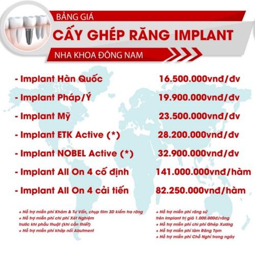 bảng giá implant nha khoa đông nam