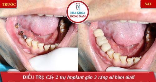 trồng 3 trụ implant răng nhai