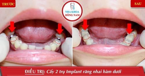 cấy 2 trụ Implant răng hàm