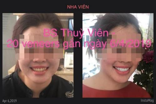 Nha Khoa Nha Viên - 87 Nguyễn Cửu Đàm Tân Phú Có Tốt Không?