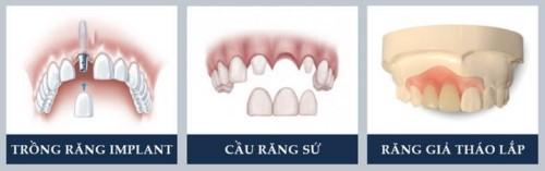 Nha khoa Quốc tế Ruby Luxury - 12L9 Ngõ 67 Phùng Khoang Thanh Xuân có tốt không?
