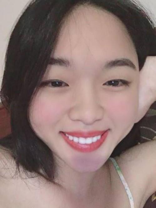 [Hỏi Đáp] 29 tuổi có thể niềng răng được không?
