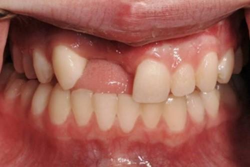 [Hỏi Đáp] Cầu răng sứ bị hư chỉnh sửa như thế nào?