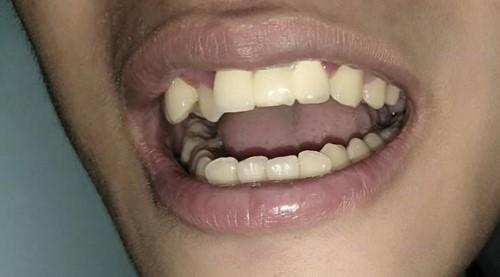 [Hỏi Đáp] Cầu răng sứ có sử dụng lâu dài?