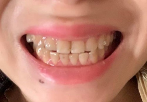 [Hỏi Đáp] Có nên phục hình răng sứ thẩm mỹ?